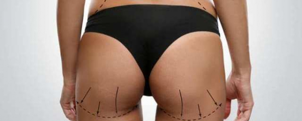 BUTTOCKS  AESTHETIC (GLUTEOPLASTY)
