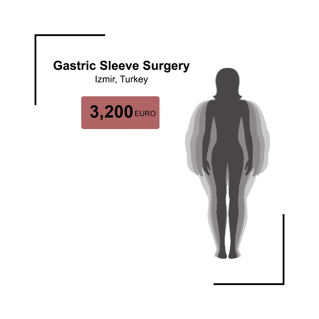 Gastric Sleeve Surgery Turkey | Sleeve Gastrectomy | Weight Loss| Obesity |